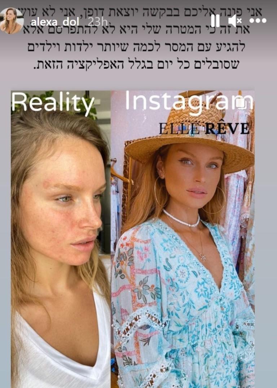 אלכסה דול לפני ואחרי